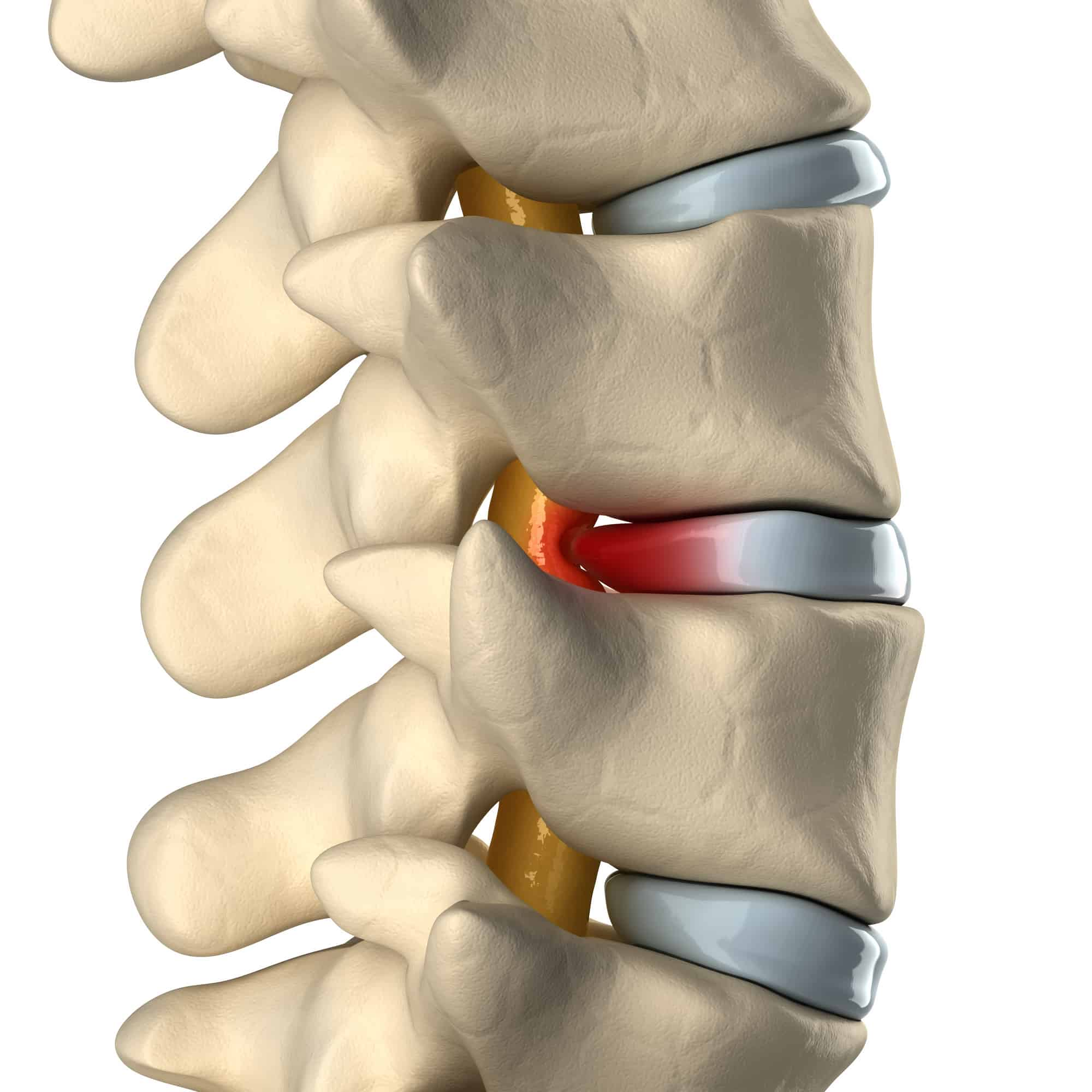 Spinal Cord Injury Manchester 1